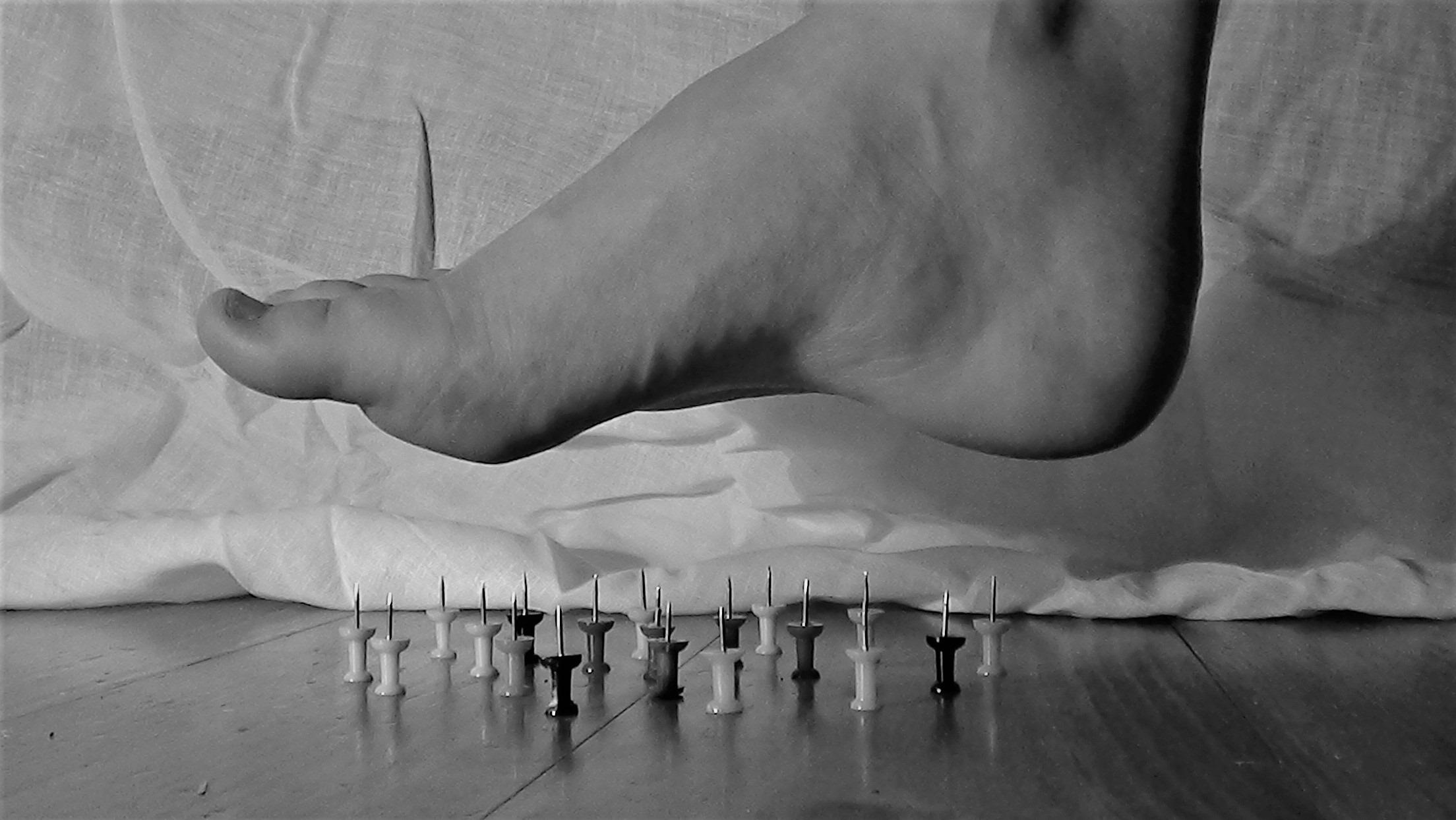 diabetic peripheral neuropathy feels like stepping on pins